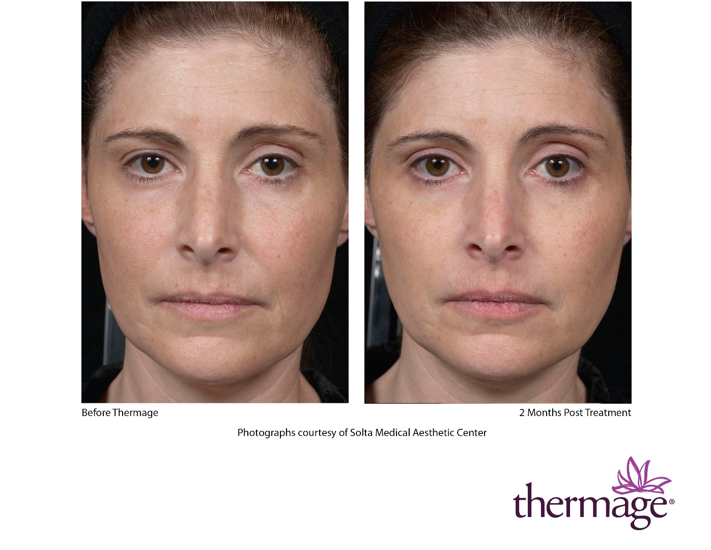 Before and After Dermatology Case Photos - Chicago Thermage before after pictures
