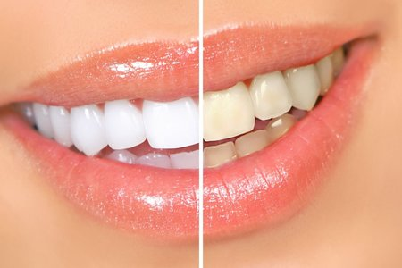 In-Office teeth Whitening (bleaching)