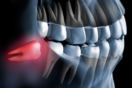 Surgical tooth extraction                                                                   [Surgical Procedures]