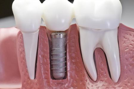 Dental Implants [Implants]