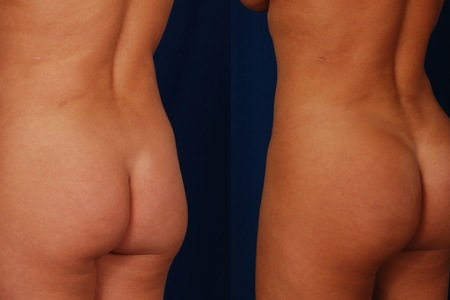 Flanks and back liposuction with buttock fat transfer before and after side e1407854066518