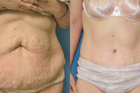 Abdominoplasty [Abdominoplasty]