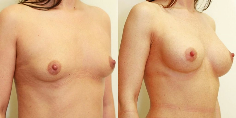 Breast enlargement before and after photo 2