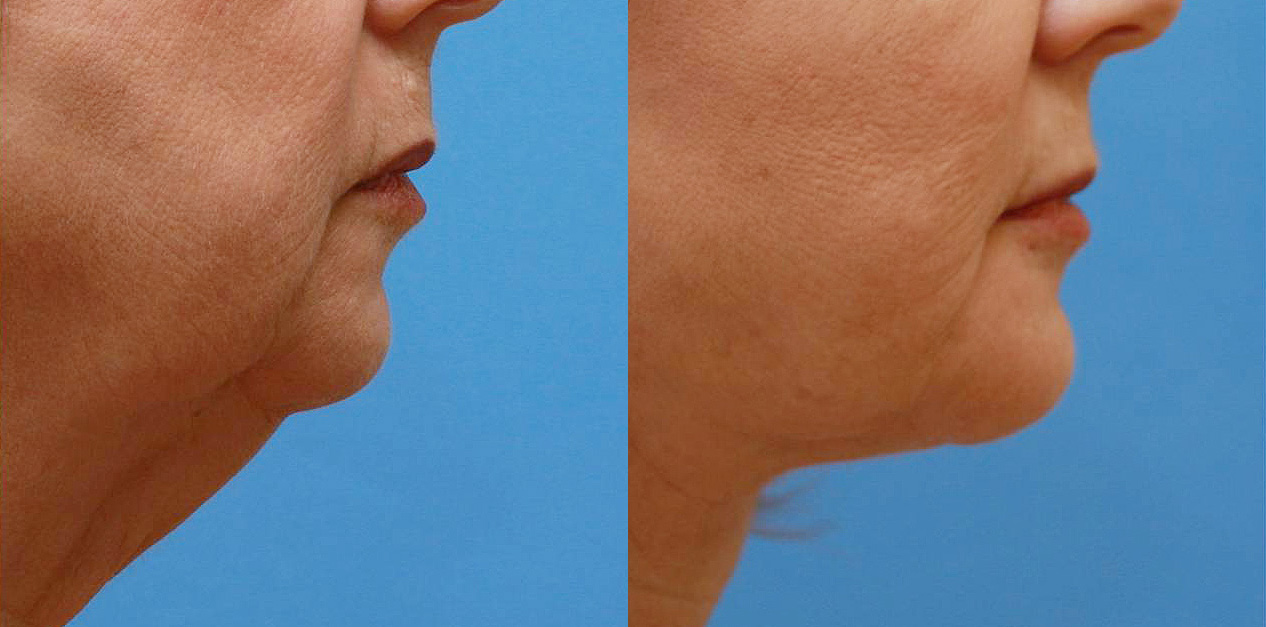 Chin implant 06a