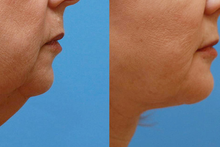 Cheek and Chin Implants