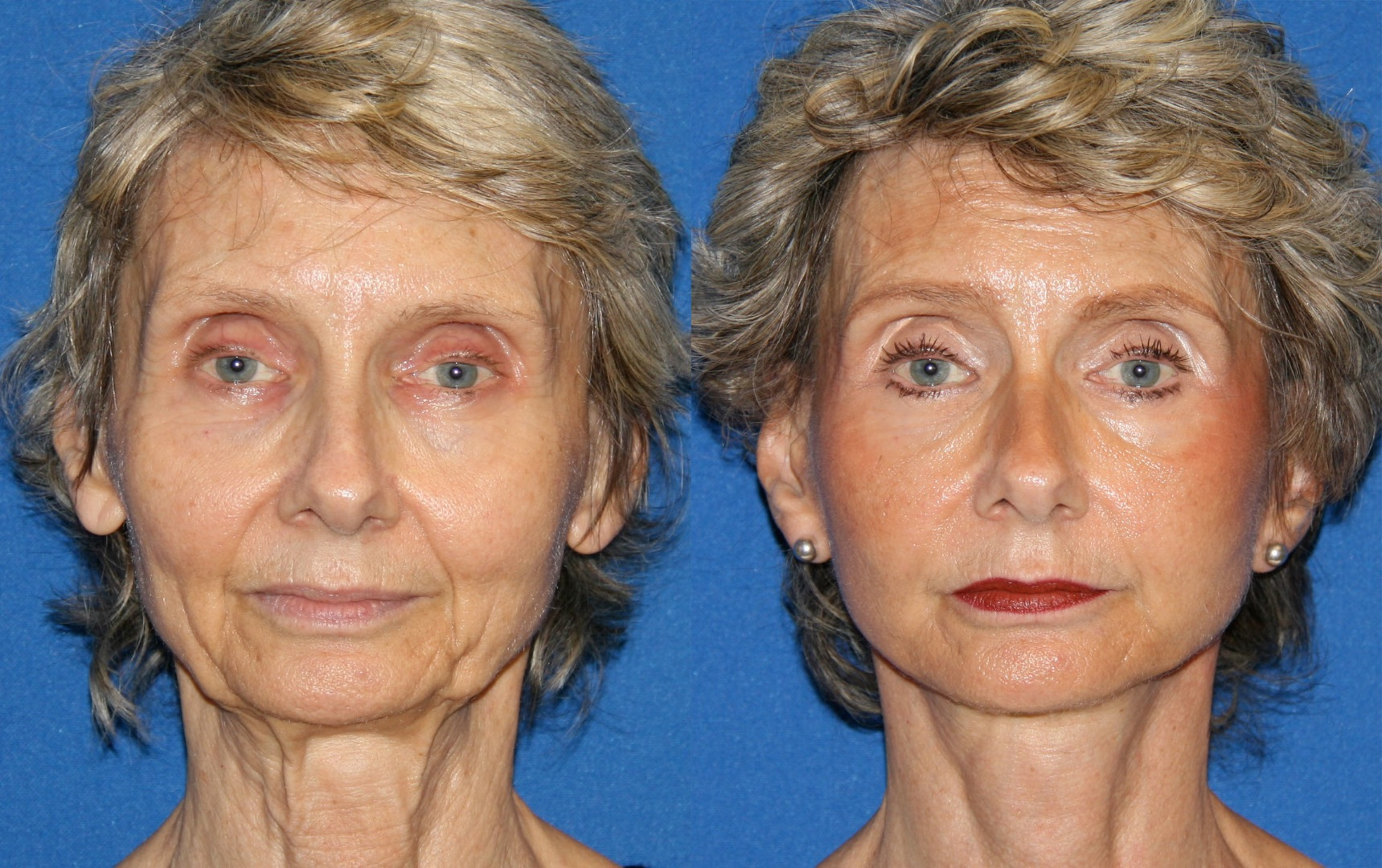 Gbefore and after facelift fat transfer