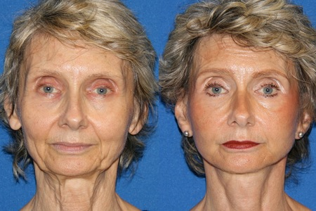 Face and Neck lift    [Medical]