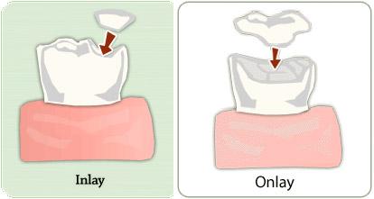 Dental inlay dental onlays