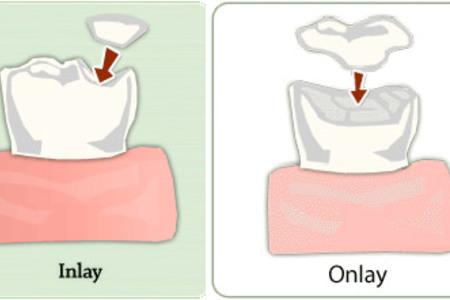 Porcelain inlays - onlays