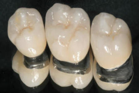 Porcelain crowns fused to metal