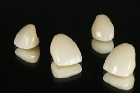 General Dentist  Porcelain Crowns [Crowns (caps) ]