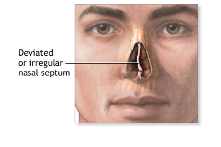 SEPTOPLASTY [Ears, nose and throat]