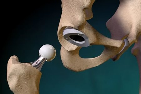 Total Hip Arthroplasty [Orthopedic surgery]