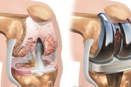 Total Knee Arthroplasty [Orthopedic surgery]