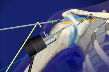 Shoulder Arthroscopy [Orthopedic surgery]