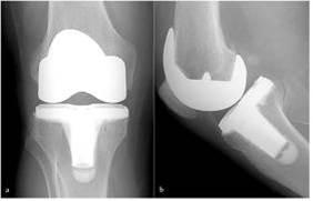 Radiografia post reemplazo de rodilla