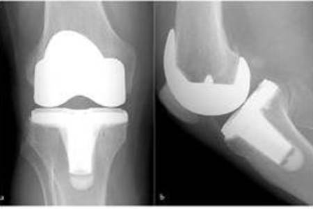 Total Knee Replacement [Orthopedic surgery]