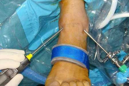 Ankle Arthroscopy [Orthopedic surgery]
