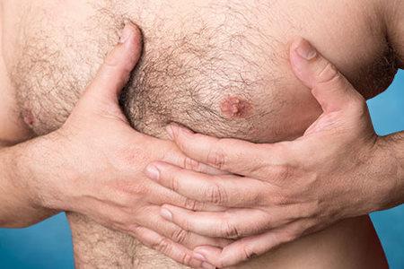 Gynecomastia Correctión [Ginecomastia]