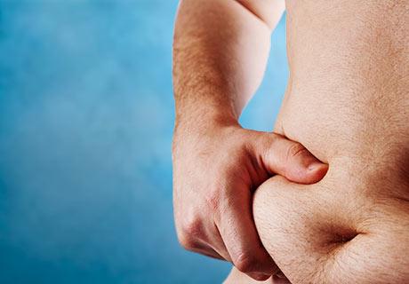 Liposuccin abdominal %281%29
