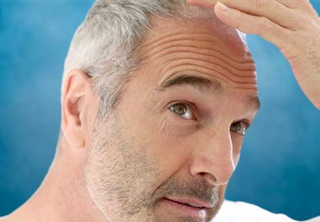 Transplante de cabello