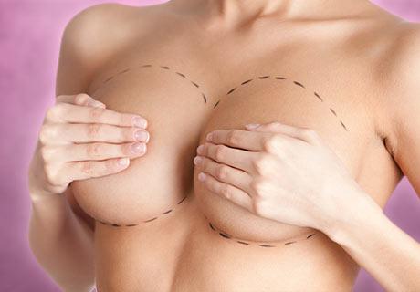 Levantamiento mamario