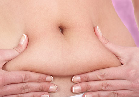 Abdominoplasta