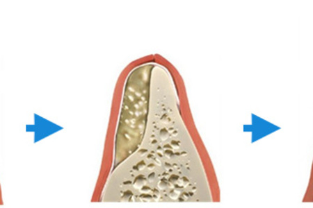 Bone graft 1