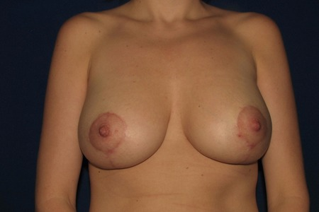 BREASTLIFT OR REDUCTION