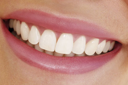 Laser Whitening [Teeth Whitening]