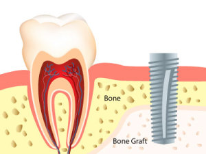 Bone Graft Globomd