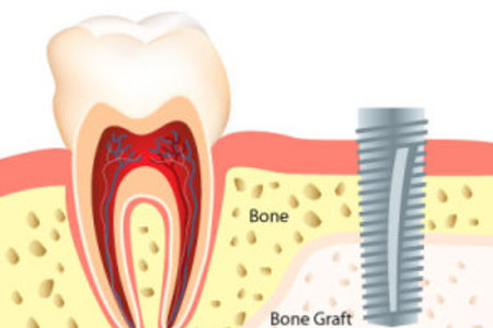 Bone Graft Globomd