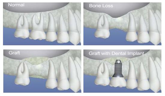Explanation bonegraft implant