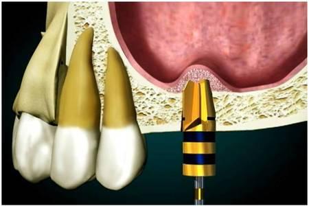 Sinal lift bone graft