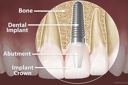 Abutment crown implant