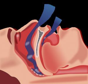 Sleep apnea 300x287