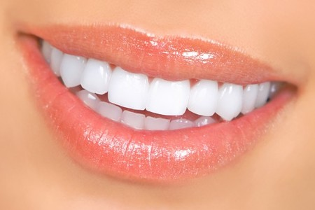 Veneers and lumineers 530x354