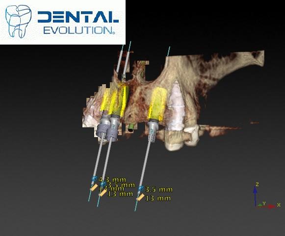 3d tomography scan 1