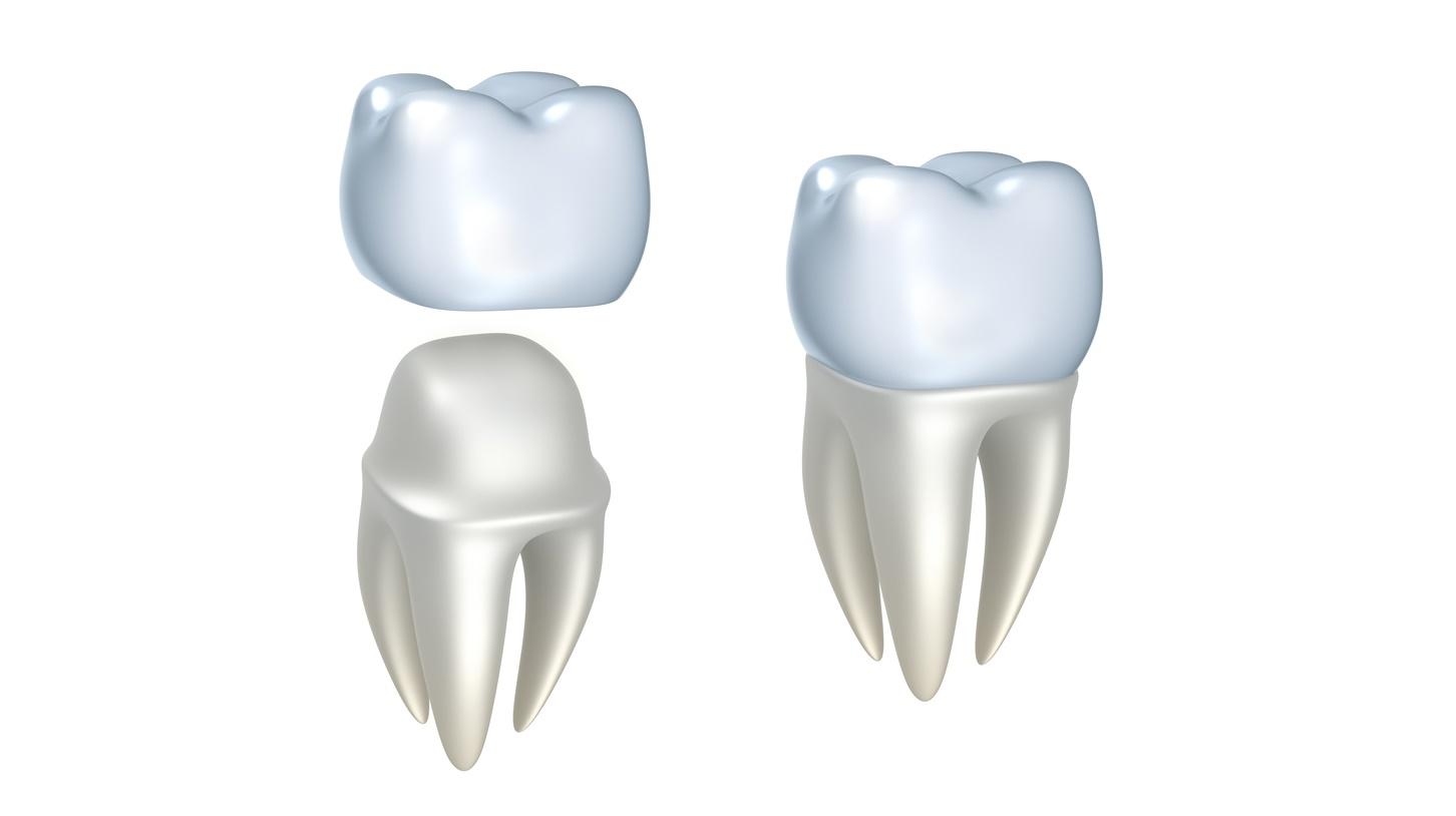 Dental crown chalfont