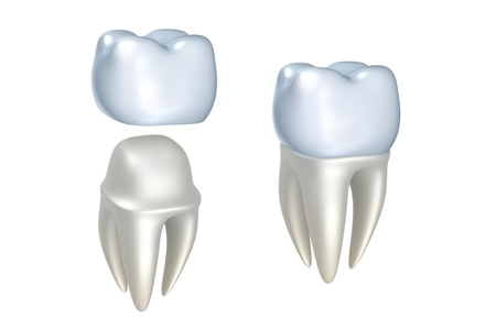 Dental Crowns -E-Max All Porcelain (retainer)