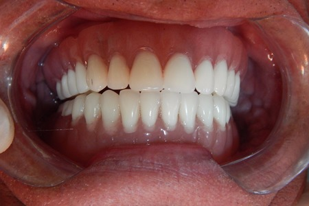 Fixed Hybrid Denture