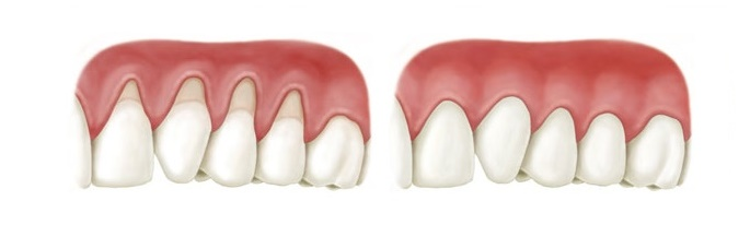 Gum grafting before and after