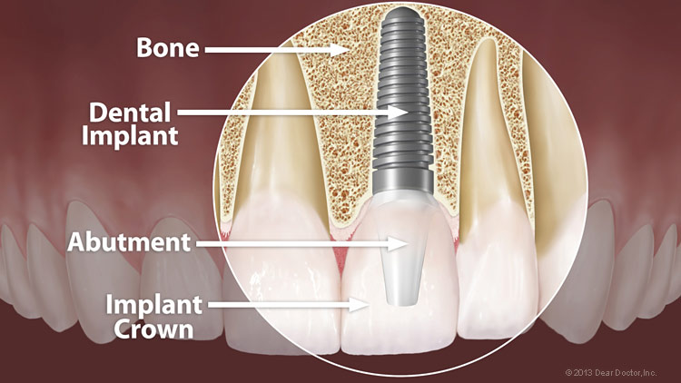 Abutment%ef%80%a2crown implant
