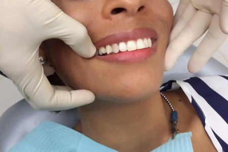 Teeth whitening before.