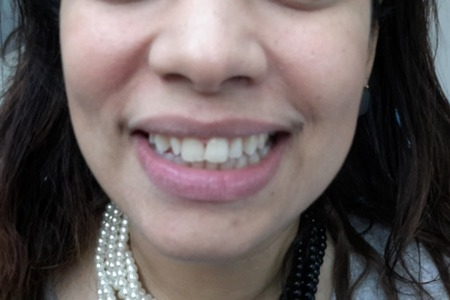 Resin veneers before