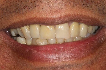Metal ceramic crowns after