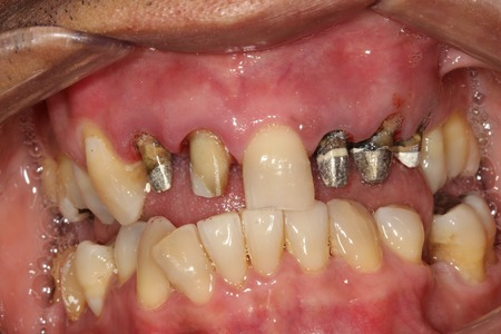 Metal ceramic crowns before
