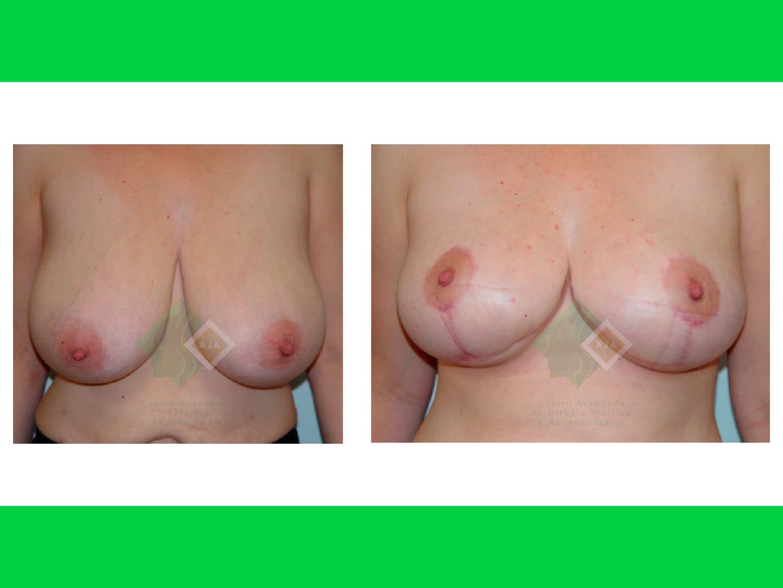 Centro avanzado de cirugi%cc%81a pla%cc%81stica y reconstructiva breastlift01