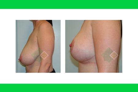 Centro avanzado de cirugi%cc%81a pla%cc%81stica y reconstructiva breastlift02