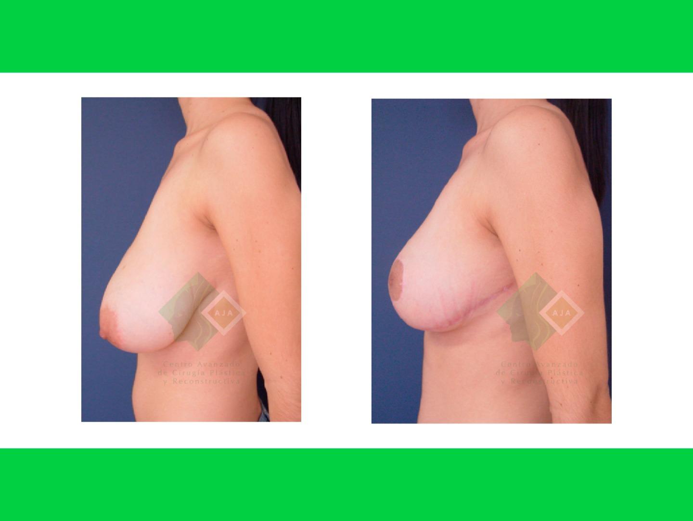 Centro avanzado de cirugi%cc%81a pla%cc%81stica y reconstructiva breastlift04